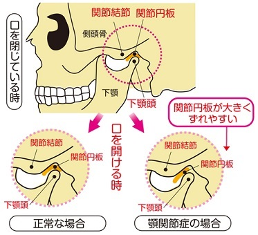 State-of-the-articular-disc-of-nomal-and-deviate-Temporomandibular-joint